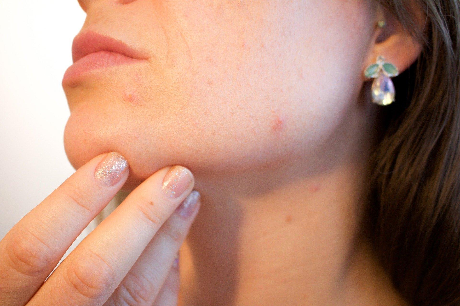 En finir avec l'acné : s'en débarrasser définitivement !
