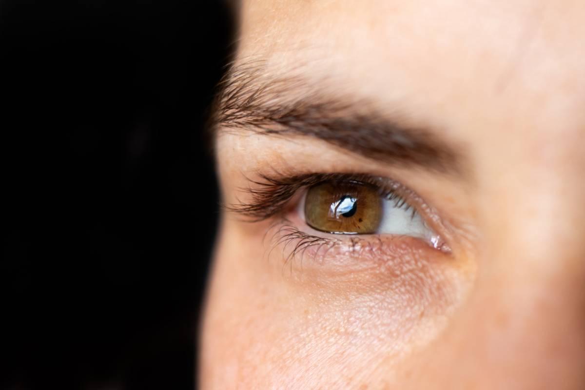 Beauté : la greffe de sourcils