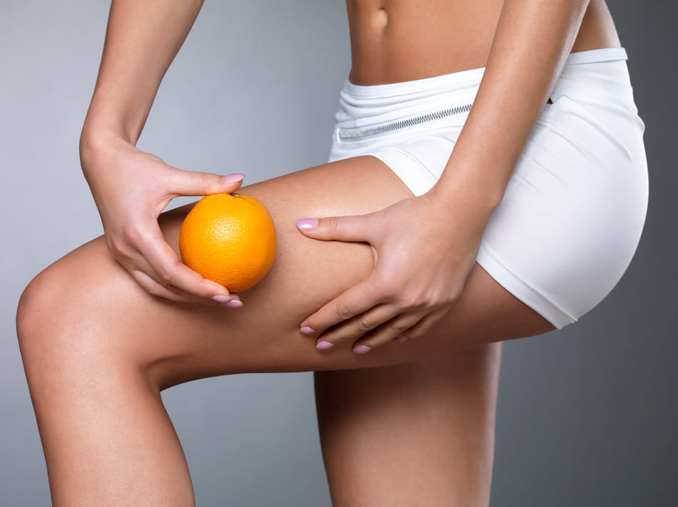 Lifting colombien cellulite